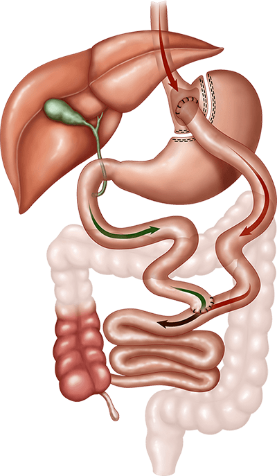 How Roux-en-Y Gastric Bypass Works