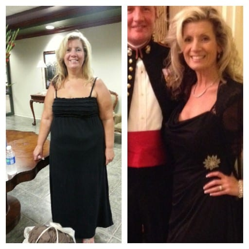 (left) Rachel in August 2012 before surgery (right) in November 2013