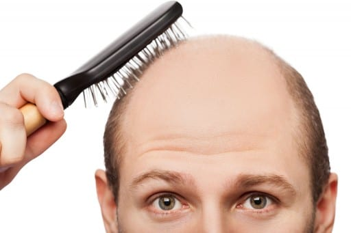 Hair Loss After Weight Loss Surgery Weightwise