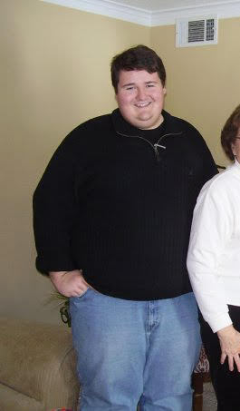 Chase weighed about 509 pounds before deciding to have the Gastric Sleeve at WeightWise