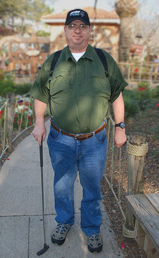 Weight Loss Surgery Oklahoma Before and After