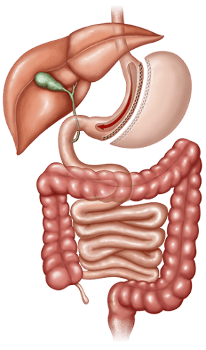 Sleeve Gastrectomy Oklahoma