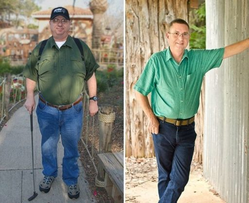 Bariatric Surgery Success Story: Before and after pictures of Mike Jantz, bariatric surgery patient